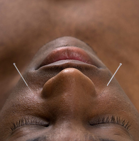 Yin Yang Acupuncture - needles in Man's face