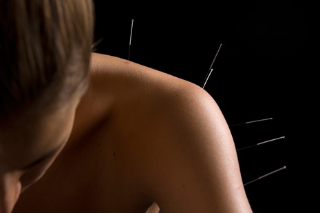 Yin Yang Acupuncture, Portsmouth - image of woman's shoulder w/ acupunture needles